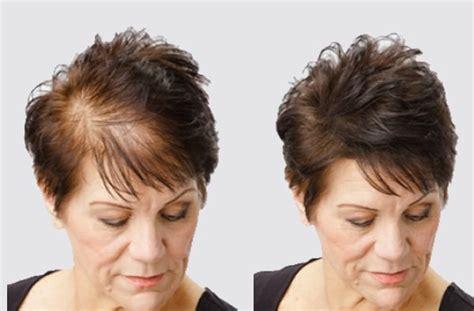 Toppik Hair Building Fiber 12 Gram Brown sol hair building fibers fiber 22g for hair loss fall
