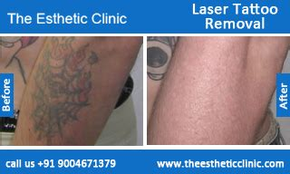 tattoo removal cost india laser removal treatment permanent removal