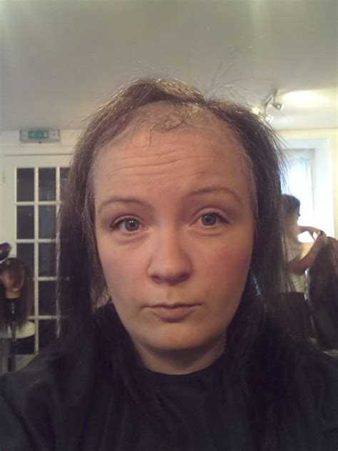 clothes for people with alopecia alopecia is ruining the lives of many women but hi tech