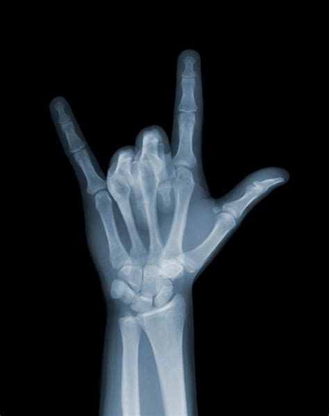 x ray amazing x ray photography vuing com