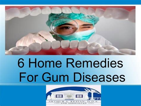 6 home remedies for gum diseases