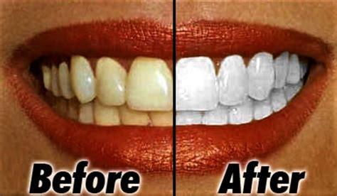 Membersihkan Gigi Kuning tips petua putihkan gigi kuning guna bahan semulajadi saja heboh