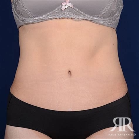 is it flaterring to the face to tuck hair behind the ears tummy tuck los angeles best beverly hills tummy tuck surgeon