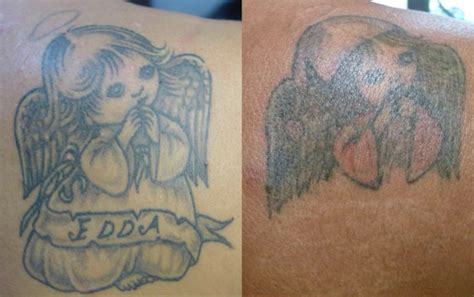 the laser tattoo removal healing process andrea catton 100 revlite laser tattoo removal andrea picosure