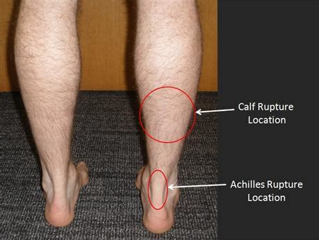 freehand calf muscle skin tear achilles tendon injury symptoms and causes home remedies