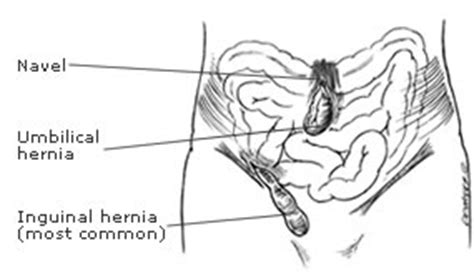 diagram of inguinal hernia northern virginia surgical specialists hernia surgery