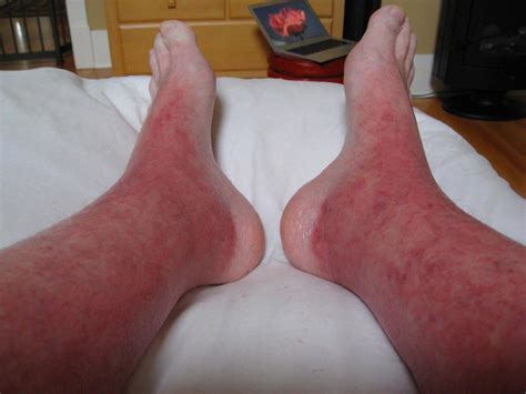 severe swelling in feet after c section topical steroid withdrawal february 2013