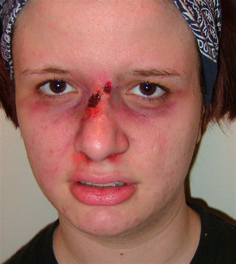 cracked nose broken nose by gwarmor13 on deviantart