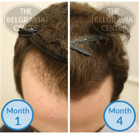 can male pattern hair loss be reversed can you reverse frontal baldness