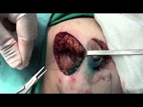 horizontal incision c section operation 31 vertical mammoplasty without inframmamary