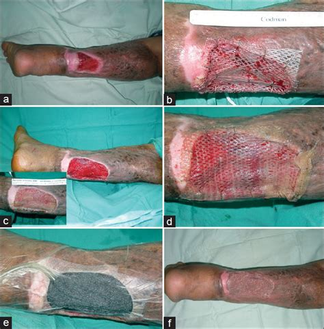 wound bed wound bed preparation pdf helperlabels