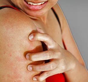 itchy skin remedy home remedies for itchy skin at