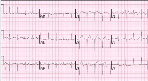 Dr. Smith's ECG Blog: Cardiogenic Shock and Pulmonary