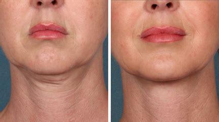 3x Laser Rejuvenation Treatment matrix s skin rejuvenation advanced laser aesthetics in