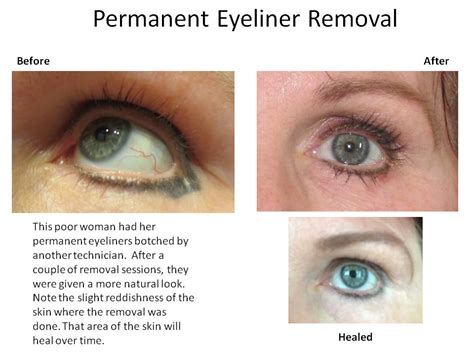 permanent tattoo removal at home how to remove permanent makeup at home style guru