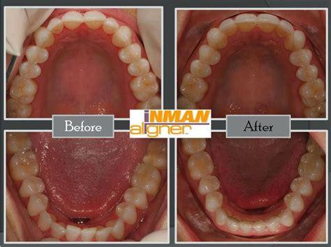 inman aligner teeth straightening adult braces