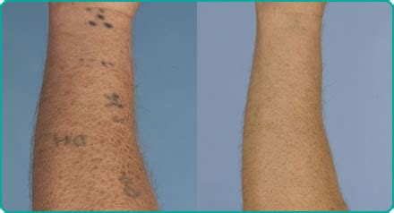 indian ink removal bristol laser centre