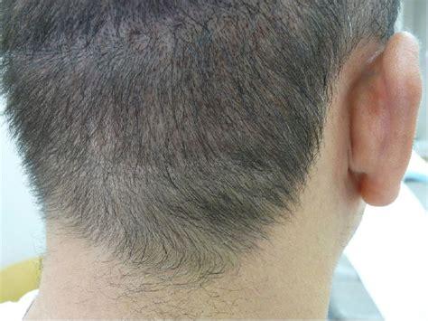 hair pigment loss pigment loss hair image