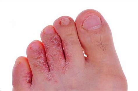 mycose siege toutes les infos m 233 dicales sur mycoses des pieds
