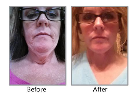 does losing weight reduce neck skin sag quot you re a caring doctor quot utah facelift patient review