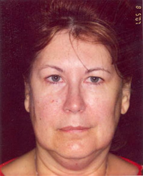 what are jowls causes prevention how to get rid of them jowls hot to get rid of double chin sagging jowls sagging