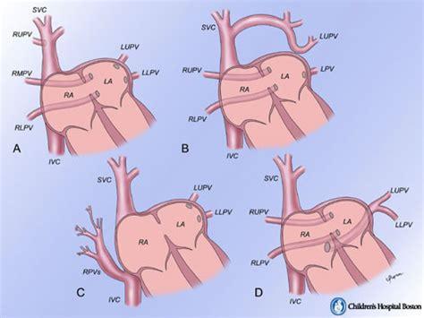 warden procedure diagram multimedia library boston children s hospital