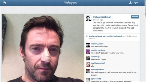 Hugh Jackman Was Stunned After Witnessing Brain Surgery by Comedian Jeannie Gaffigan Recovering From Brain Surgery Cnn