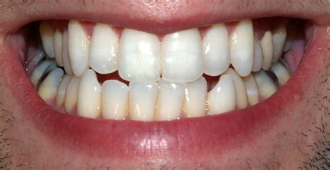 The Tooth permanent teeth