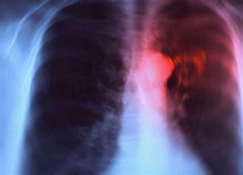 dolore interno scapola sinistra cancro polmoni sintomi sintomi e diffusione cancro