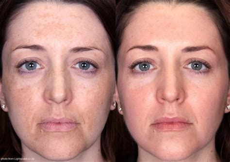 treating melasma get rid of brown spots that occur during