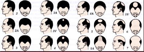 female pattern hair loss classification dr tk hair clinic