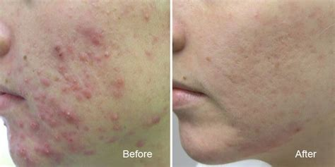 acne scar removal in surrey near vancouver w levulan therapy