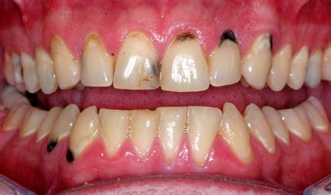 black teeth black spot on tooth causes and treatment