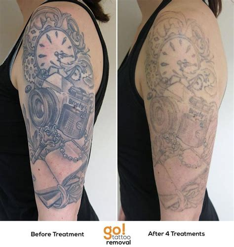 huge tattoo removal 840 best removal in progress images on