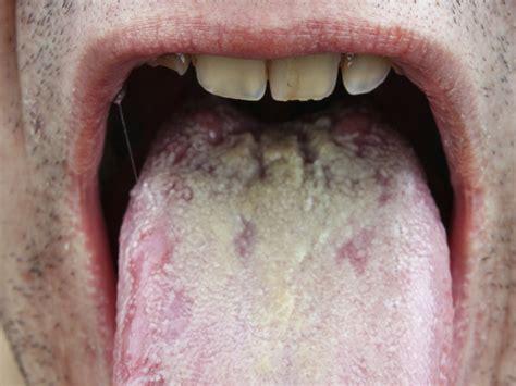imagenes de manchas oscuras en la lengua 5 enfermedades que no sab 237 as que tu lengua pod 237 a sufrir vix