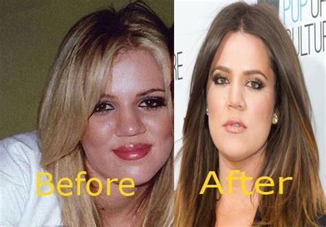 khloe kardashian nose job    celeb dirty