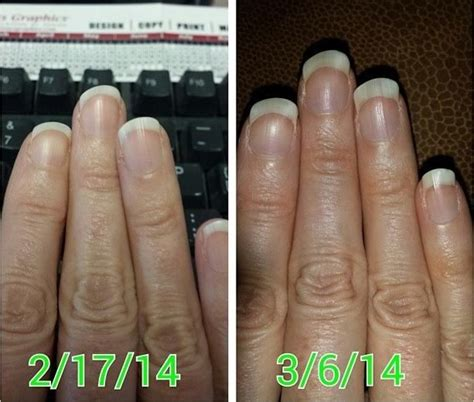 biotin after 3 months nail growth biotin skin before and after www pixshark com images