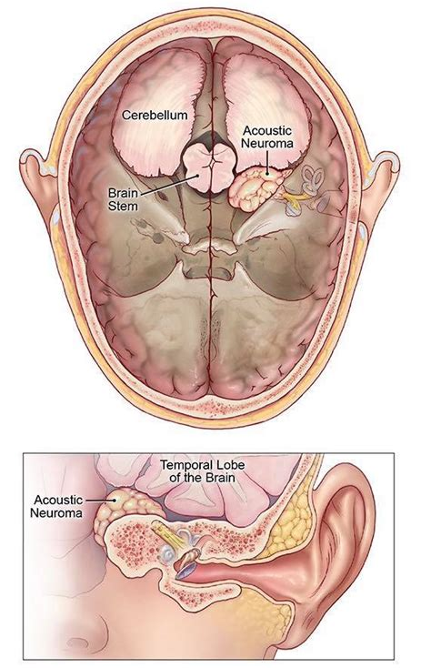 best acoustic neuroma surgeons 3 cm large benign acoustic neuroma surgery the hong kong