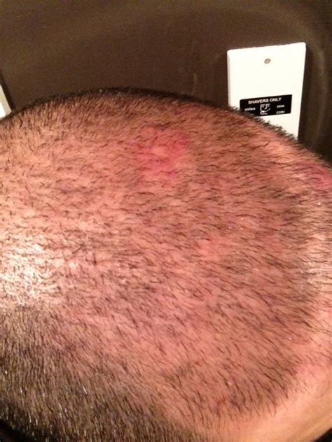 red spots on scalp red bump on scalp