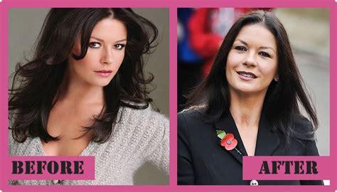 catherine zeta jones surgery catherine zeta jones plastic surgery before and after