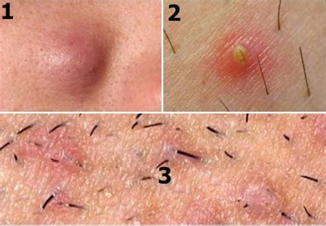 it looks like a simple ingrown hair ingrown armpit hair causes symptom and removal strong hair
