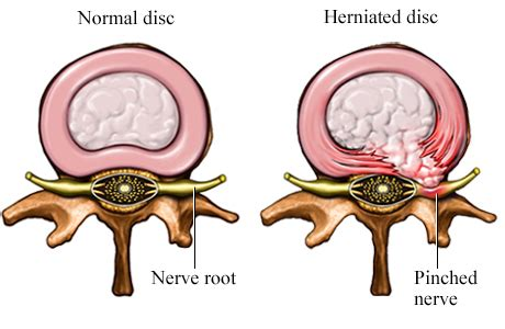 herniated disc diagram herniated disc and pinched nerve of michigan