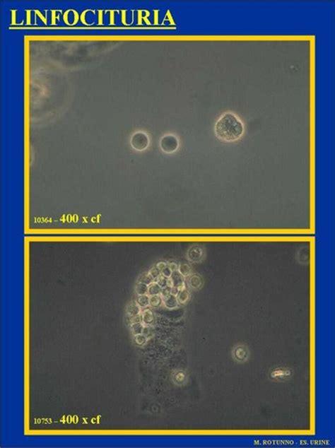 leucociti a tappeto 2006 l esame sedimento urinario tra artigianato ed