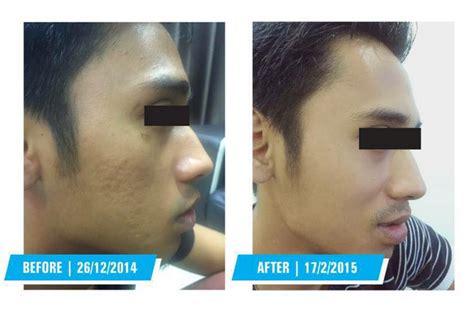 Serum Bopeng 1 azanis scar serum advanced formula v2 11street malaysia