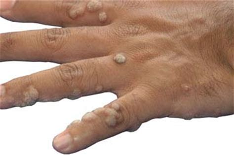 Symptoms Of Planters Warts by Warts Symptoms Welcomecure