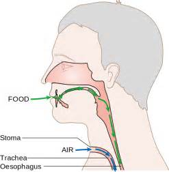 laryngectomy diagram unwelcome colonisers biofilm formation on voice
