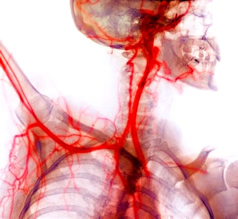 la sangue sistema cardiorrespirat 243 meio interno sangue e linfa