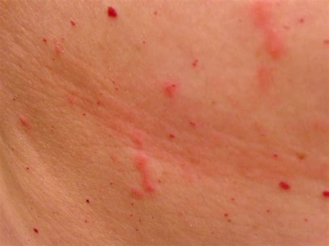 rash on rash on torso pictures photos