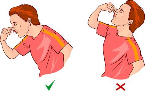 cortar hemorragia nasal estas son las causas de la hemorragia nasal y los mejores