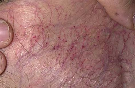 scrotum tattoo glans removal related keywords glans removal